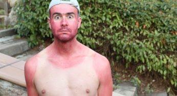 Coup de soleil : comment éviter les excès de bronzage ?