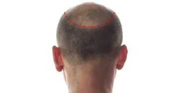 Greffe de cheveux : et si vous passiez à l'acte ?