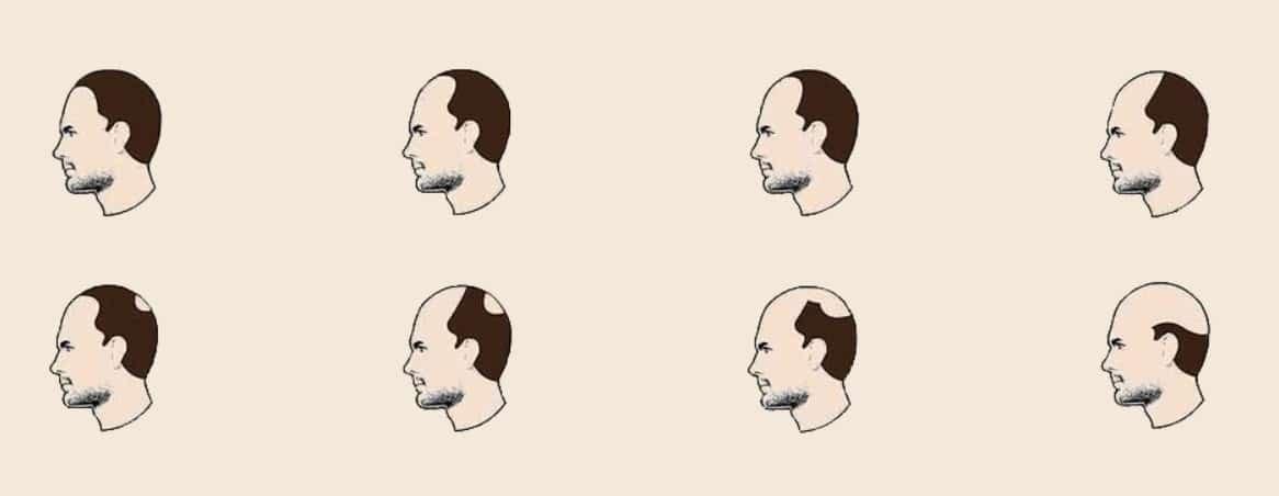 Perte de cheveux - L'échelle de Norwood Hamilton