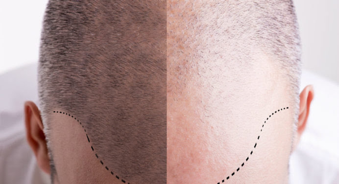 Le tatouage de cuir chevelu, nouvelle tendance masculine ?