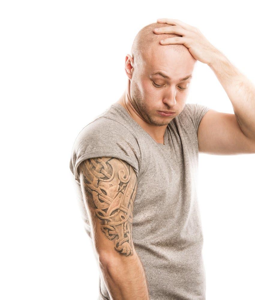 Enlever un tatouage : possible, mais pas facile